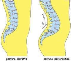 La postura della zona lombare modificata dall'utilizzo delle scarpe da tango col tacco